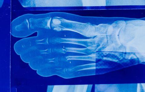 Medizin studieren ohne Abitur und Röntgenbilder lesen